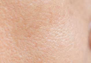 Larocheposay ArtikelSide uren hud Alt om uren hud og fedtet hud