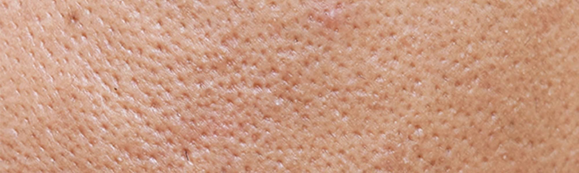 Larocheposay ArtikelSide uren hud Sådan slipper du af hudorme
