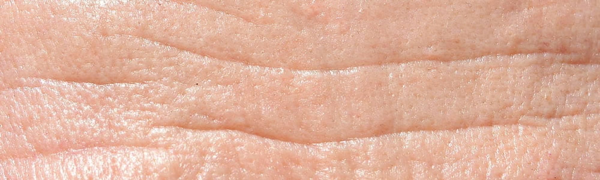 LarocheposayArtikelSideSolSolfremkalderaldersbetinget pigmentering