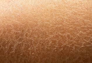 Larocheposay ArtikelSide Sensitiv dehydreret hud